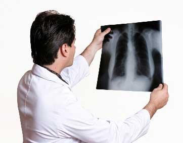 x-ray-films